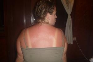 Last day sunburns...
